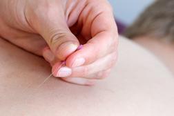 Akupunktur und Triggerpunkt Akupunktur in Krefeld