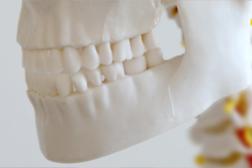 Craniomandibuläre Dysfunktion ein Schwerpunkt der Praxis Dr. med. Grawe